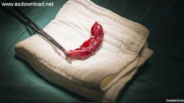 man_cut_appendix (5)