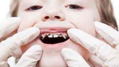 Photo of راه های جلوگیری از پوسیدگی دندان کودکان