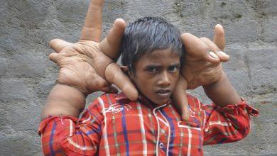 Photo of دارنده بزرگترین دست ها در جهان