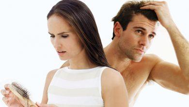 Photo of مهم ترین دلایل ریزش مو +راه های پیشگیری