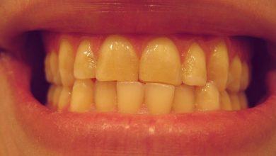 Photo of چرا دندانقروچه می کنیم؟