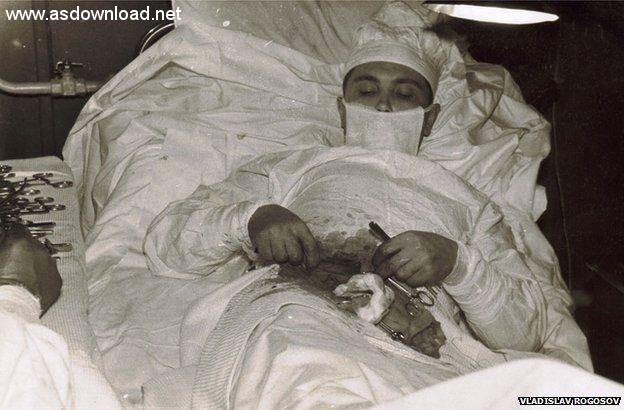 man_cut_appendix (4)